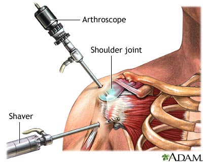 shoulder-surgery-effectiveness